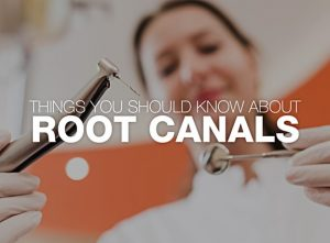 Things You Should Know about Root Canals